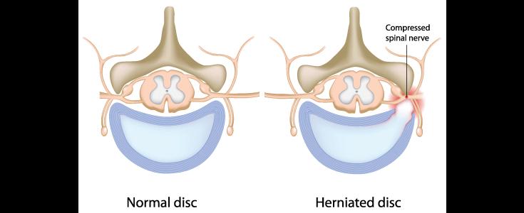 slipped disc diagram